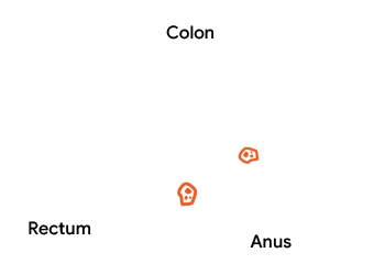Colorectal Cancer Diagnosis Tests Colonoscopy Lal Pathlabs